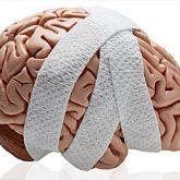 Los Mejores Abogados en Español de Lesiones Cerebrales Para Mayor Compensación en Chicago